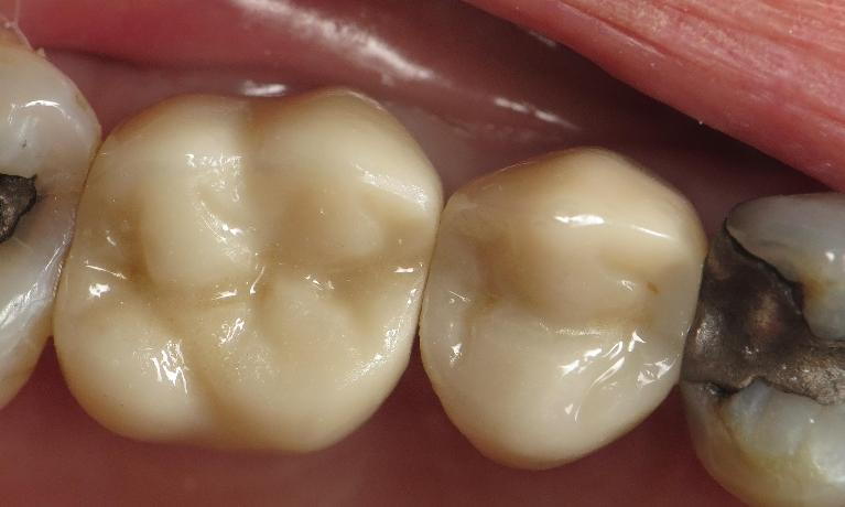 Ceramic-Crowns-After-Image