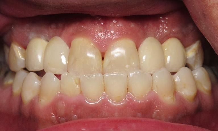 Dental-Implant-Bridges-After-Image