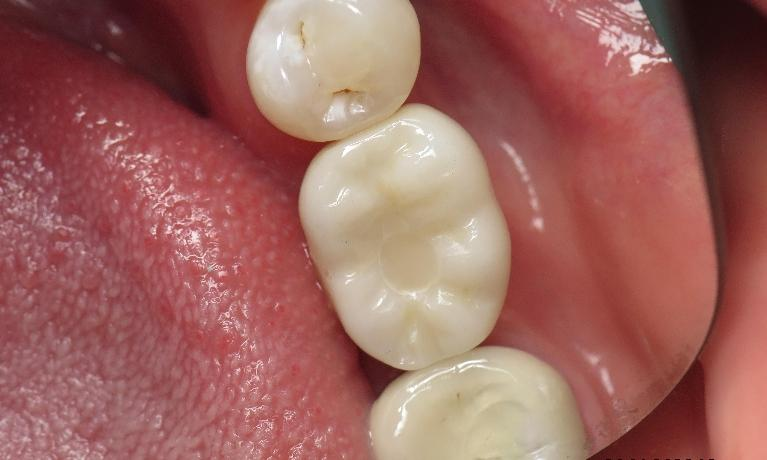 Dental-Implant-and-Ceramic-Crown-After-Image
