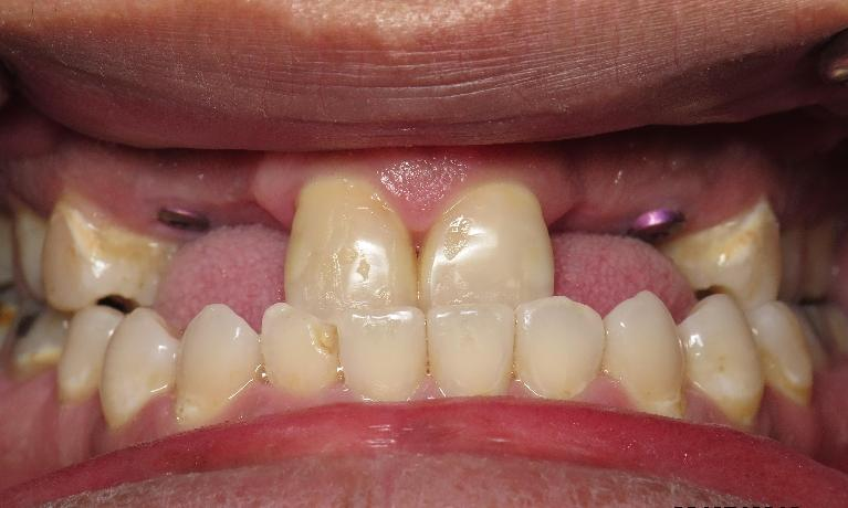 Dental-Implant-Bridges-Before-Image
